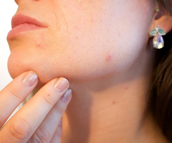 acne-et-peau-grasse-esthetique-huguette-turcotte