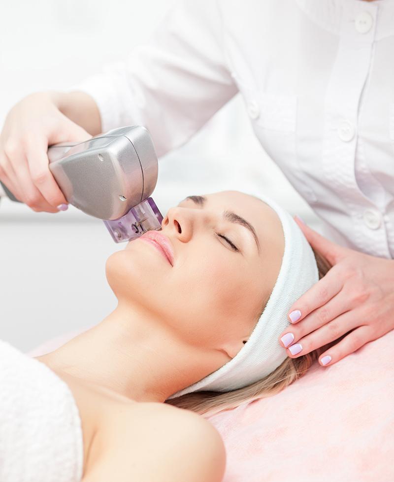 Photorajeunissement IPL pour traitement rosacée, couperose et acné - esthéticienne Longueuil, rive-sud de Montréal